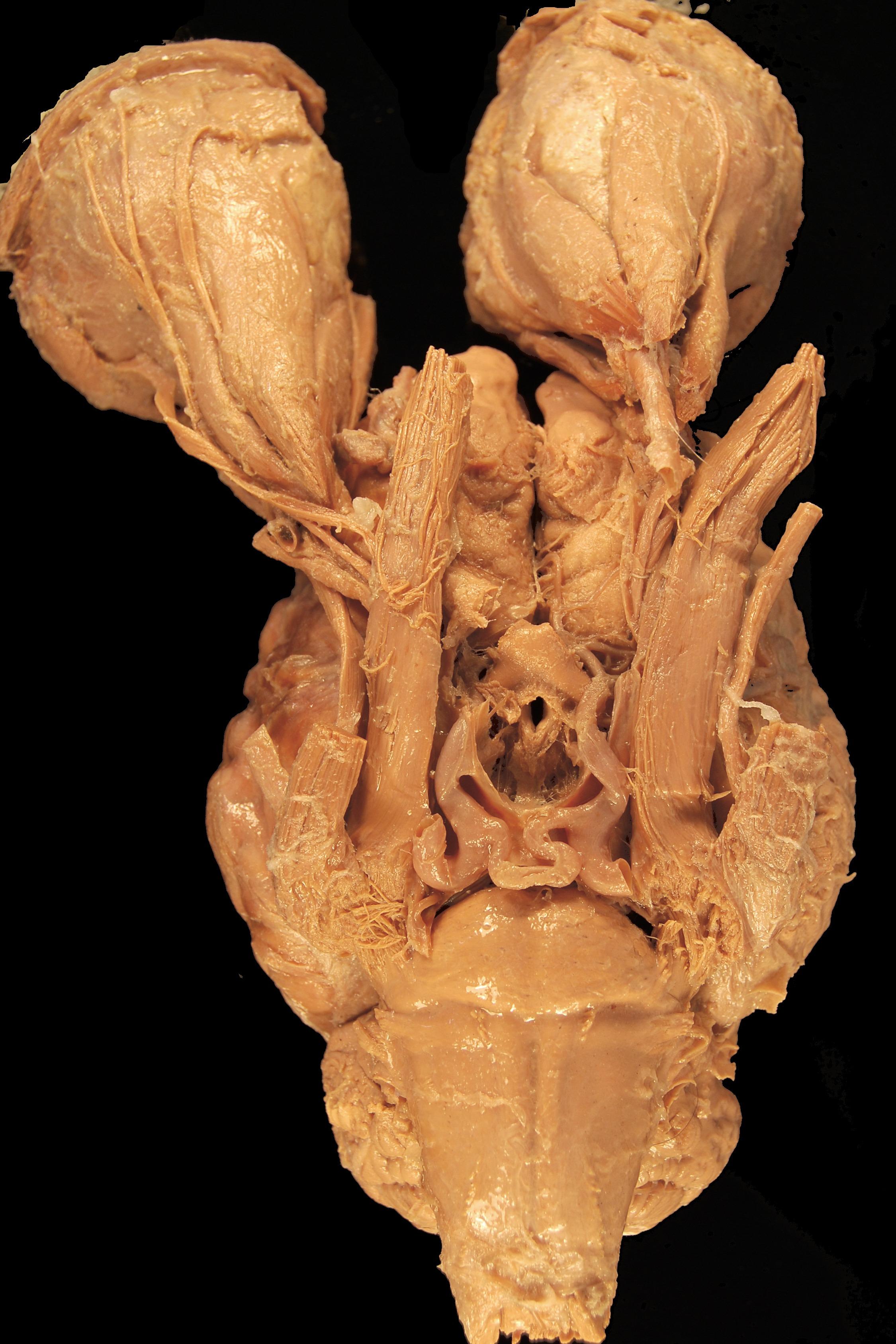 Fotos gratis : biología, caballo, cráneo, cuerpo humano, escultura ...