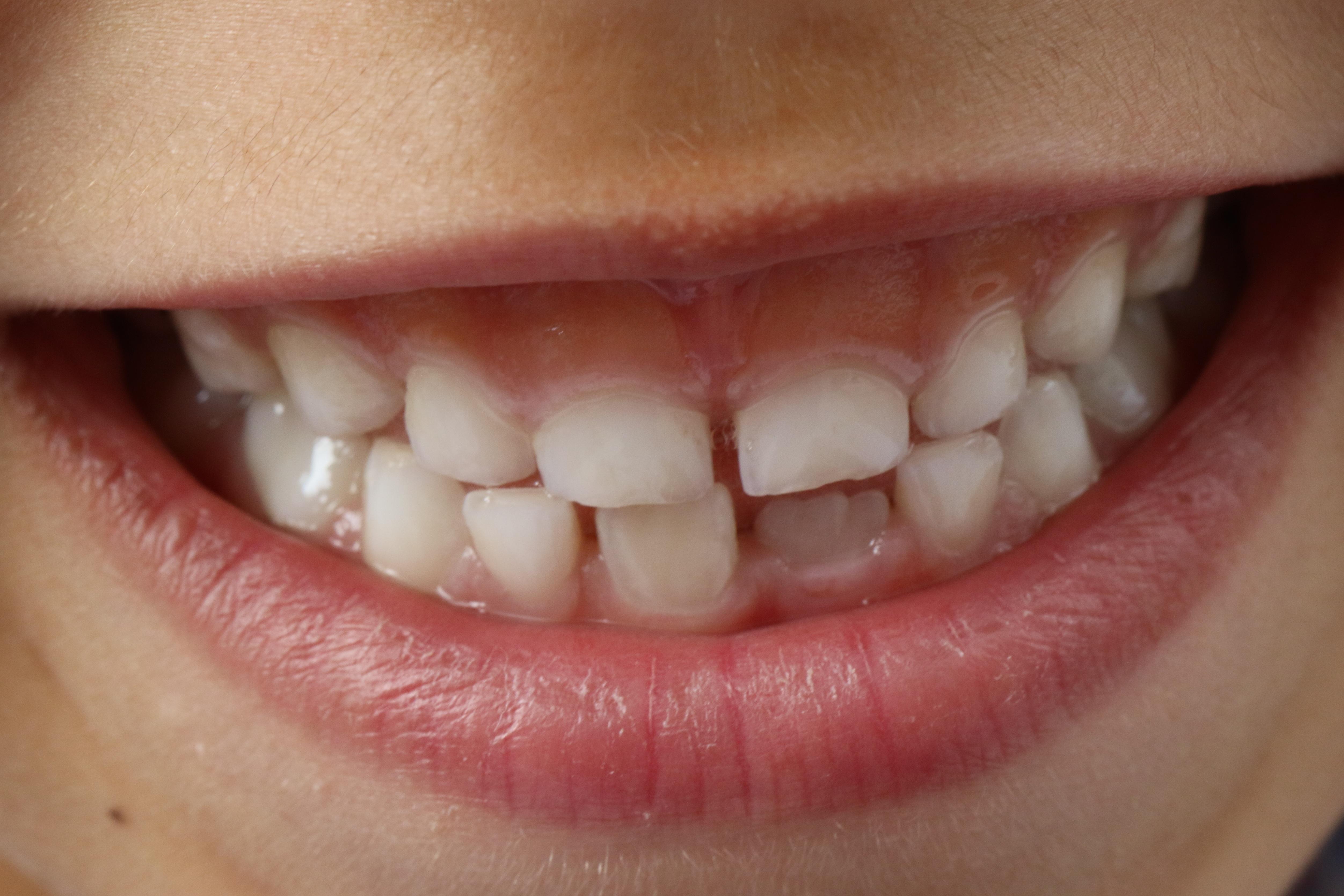 Kostenlose foto : reinigen, Gesichtsausdruck, Lippe, lächelnd ...
