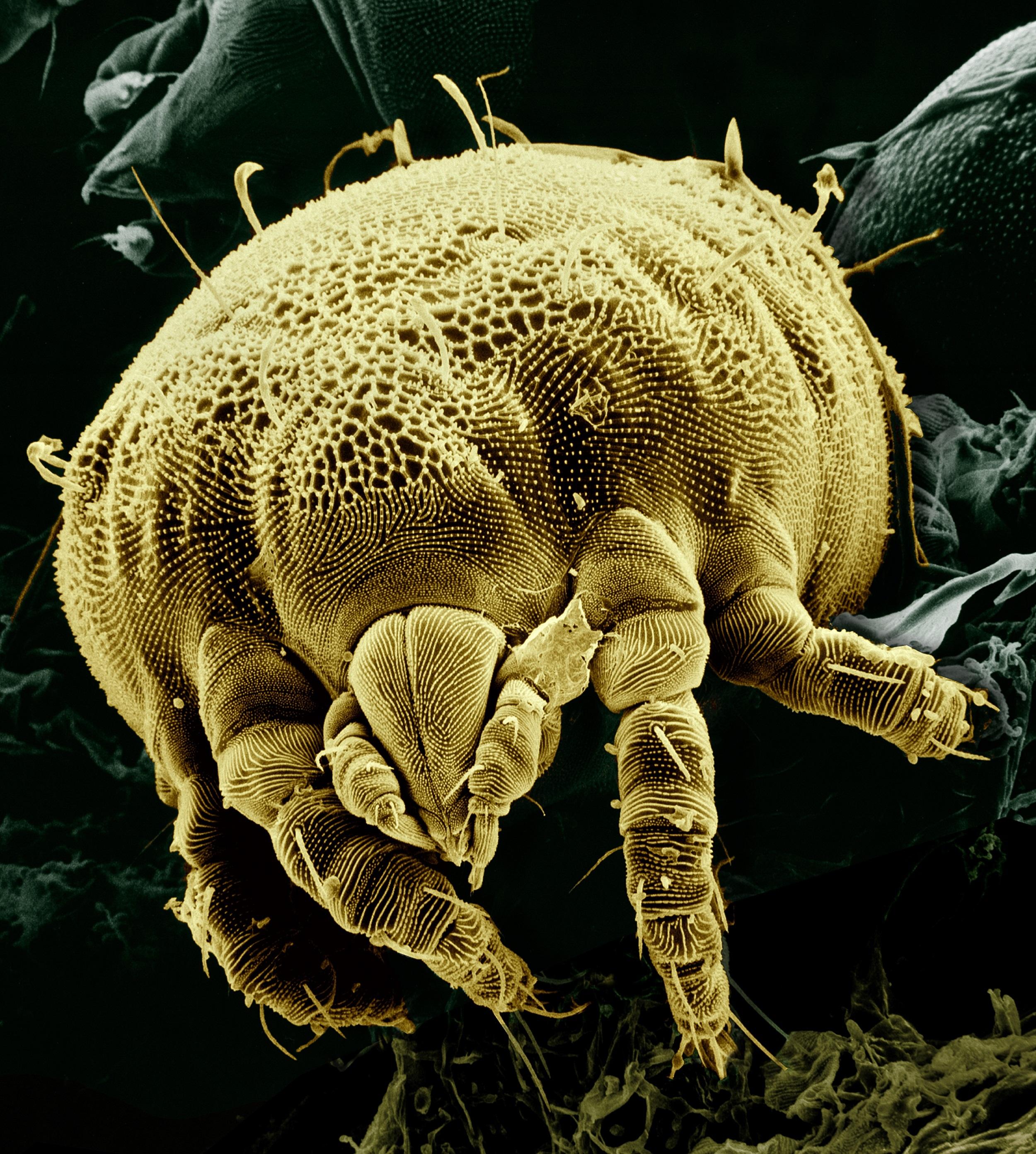 Какие на коже живут микробы фото