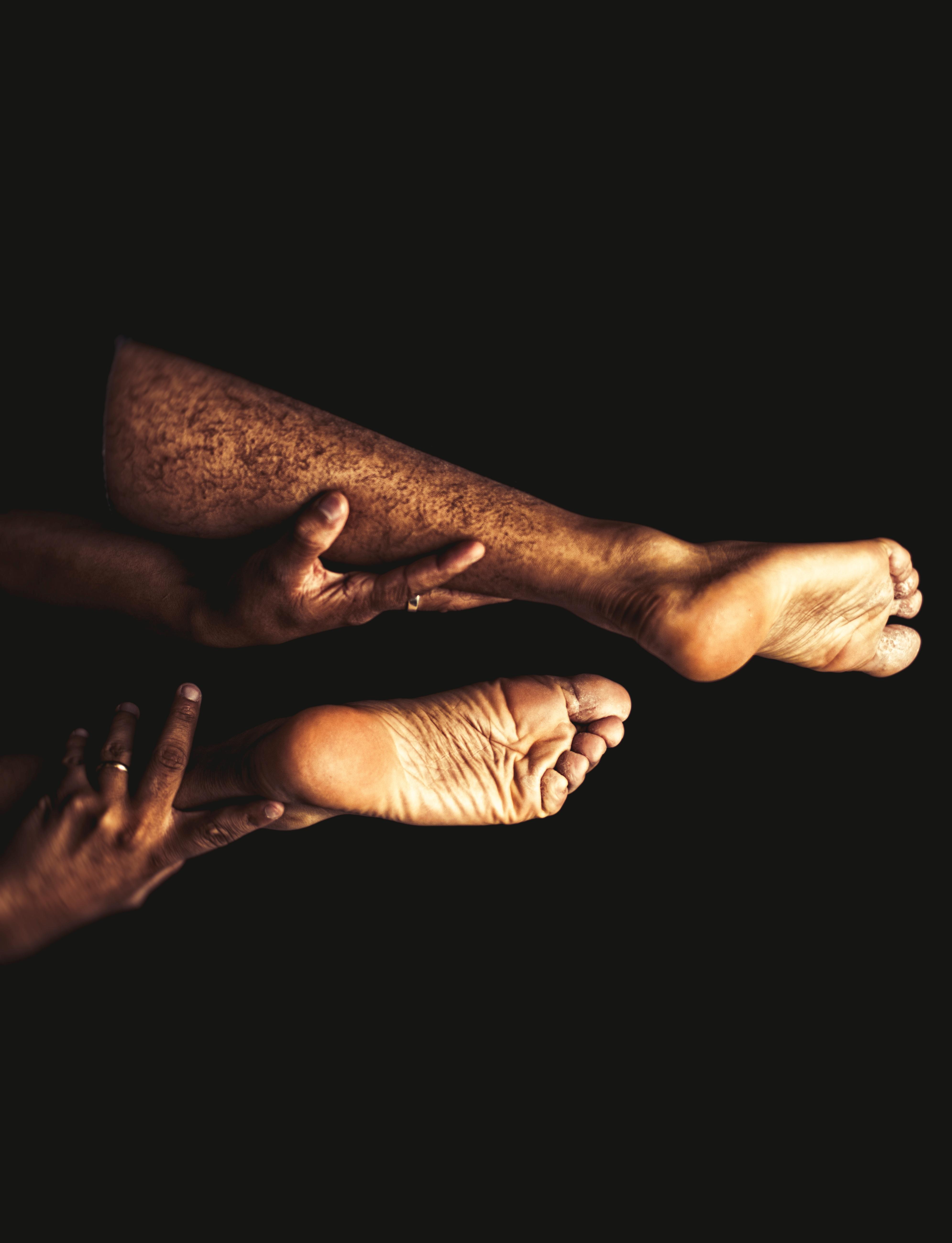 человек у которого нет не рук не ног в картинках закрытые многоместные