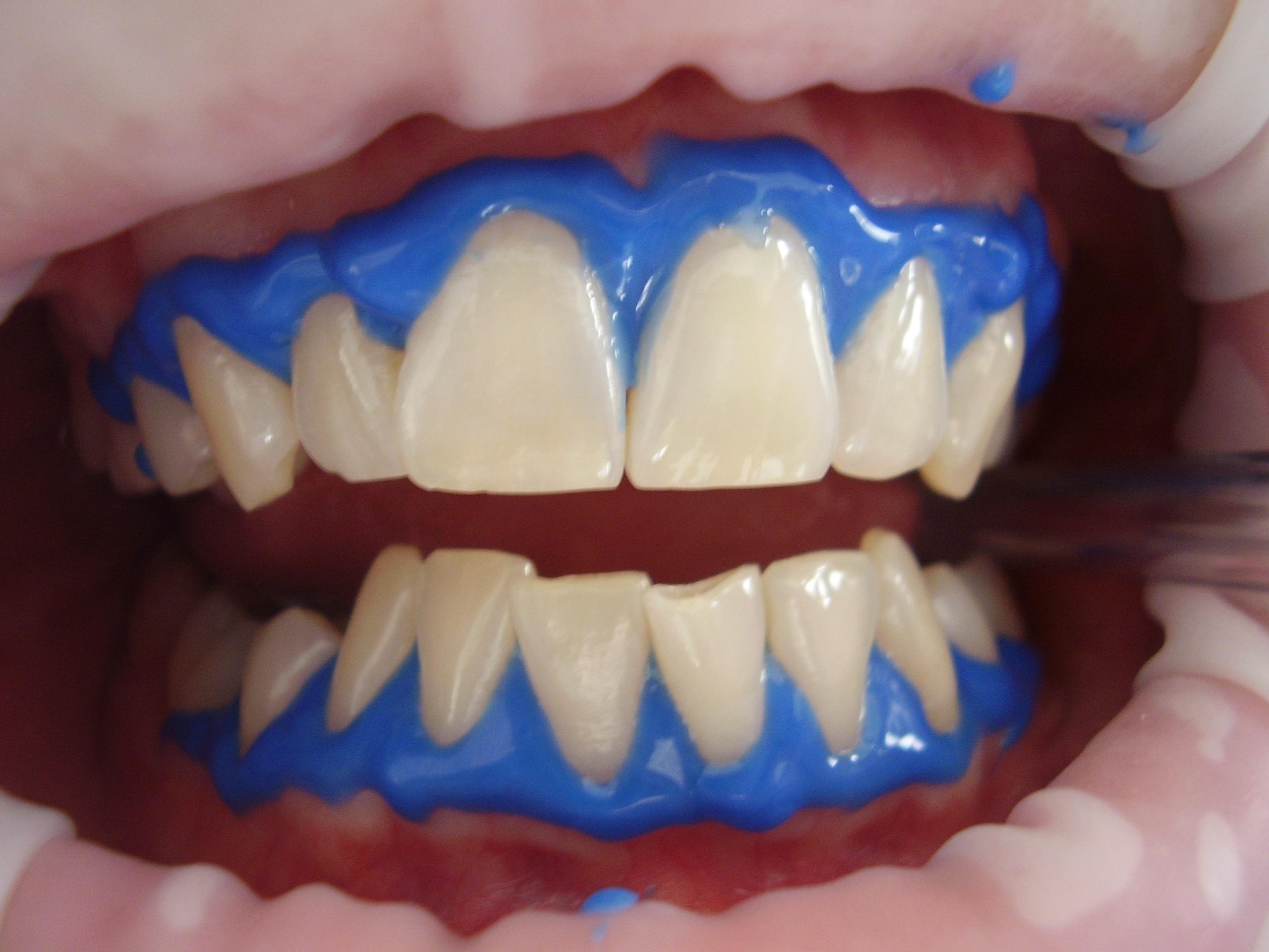 Как за 1 час отбелить зубы в домашних условиях без вреда