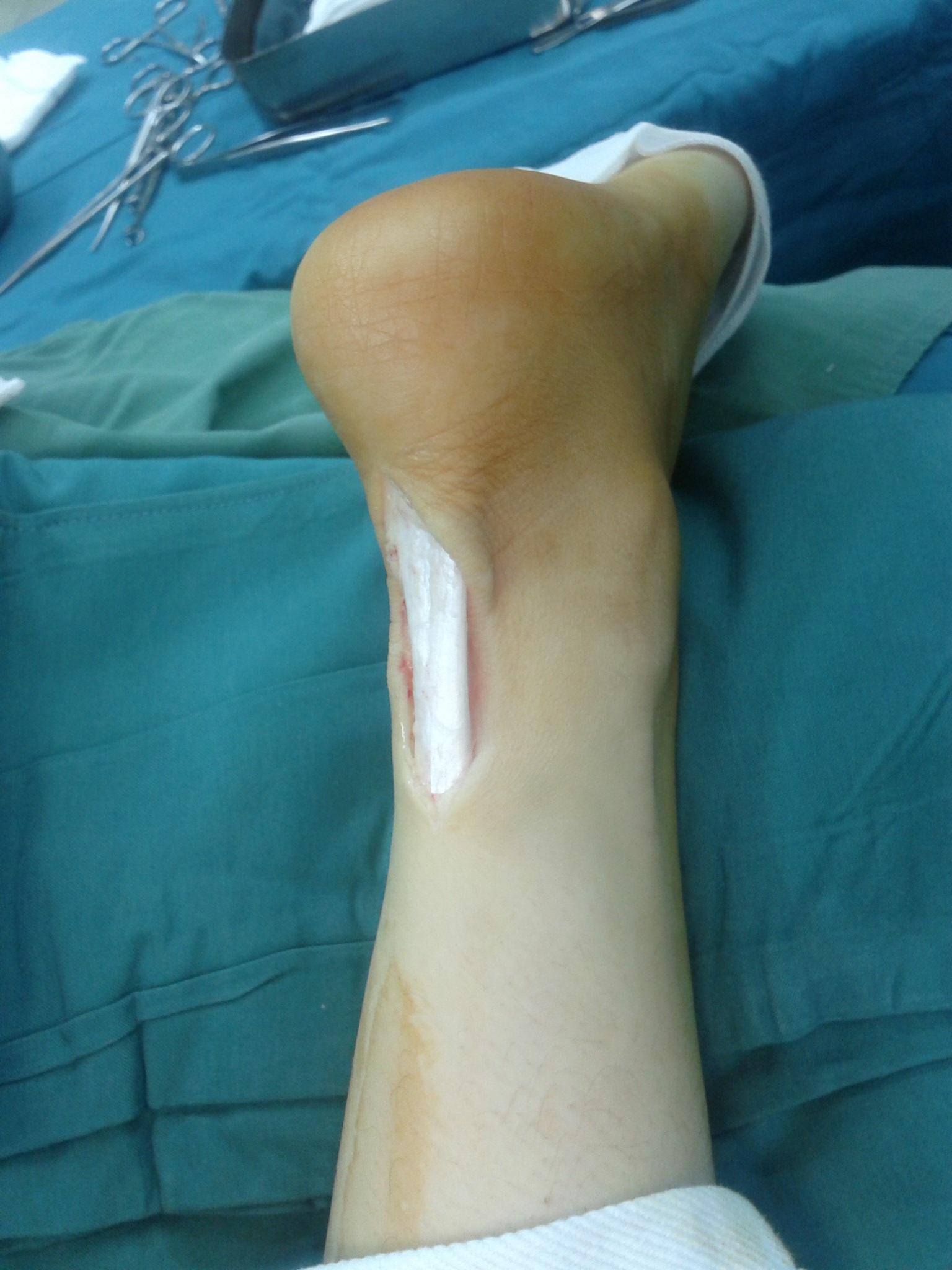 Kostenlose foto : Hand, Bein, Finger, Medizin, Arm, Muskel, Brust ...