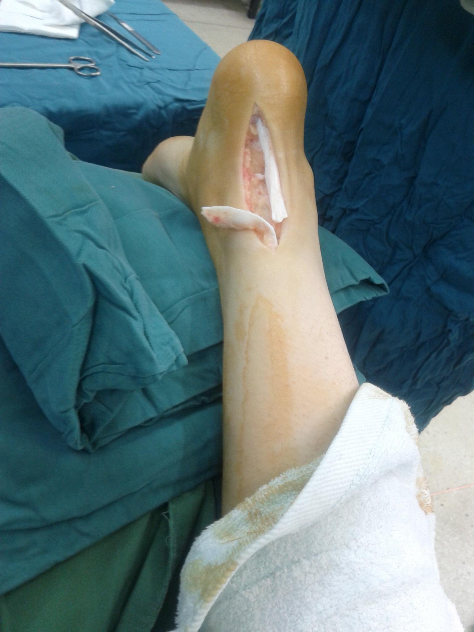Fotos gratis : mano, pierna, dedo, medicina, brazo, músculo, cuerpo ...