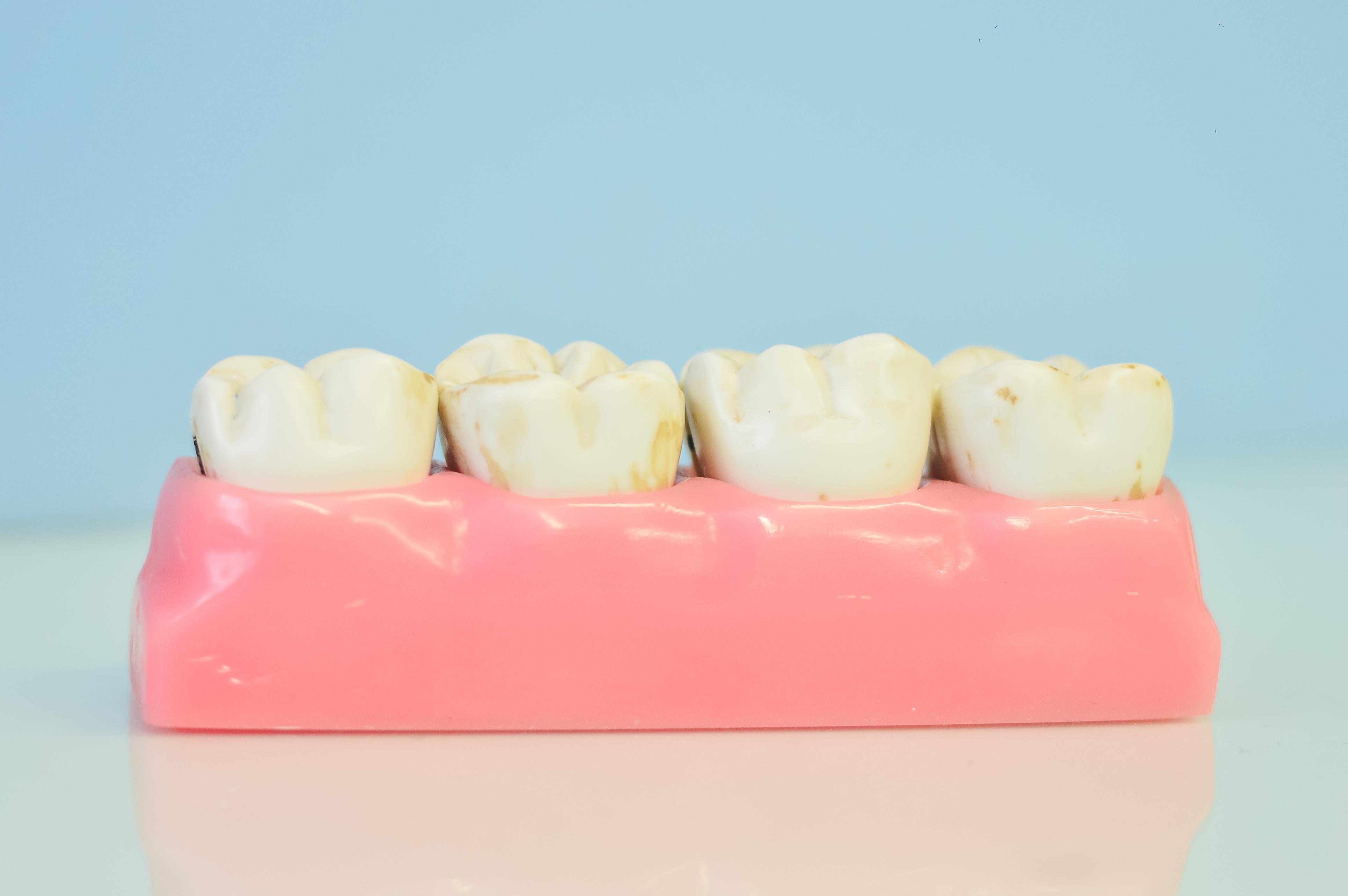 Kostenlose foto : Hand, Mund, menschlicher Körper, Organ, Zahn ...