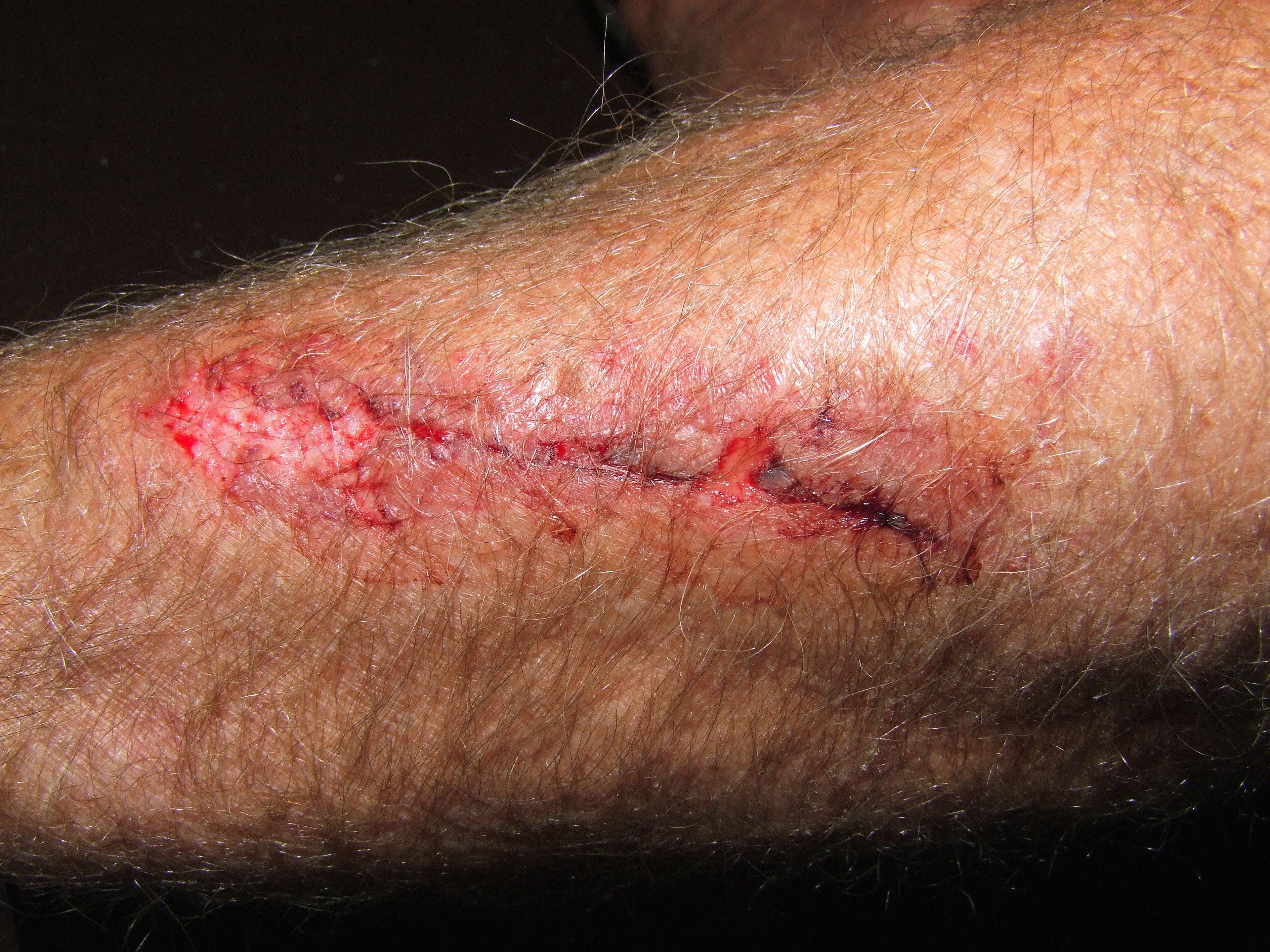 Etiket: yara izlerini tedavi etmek