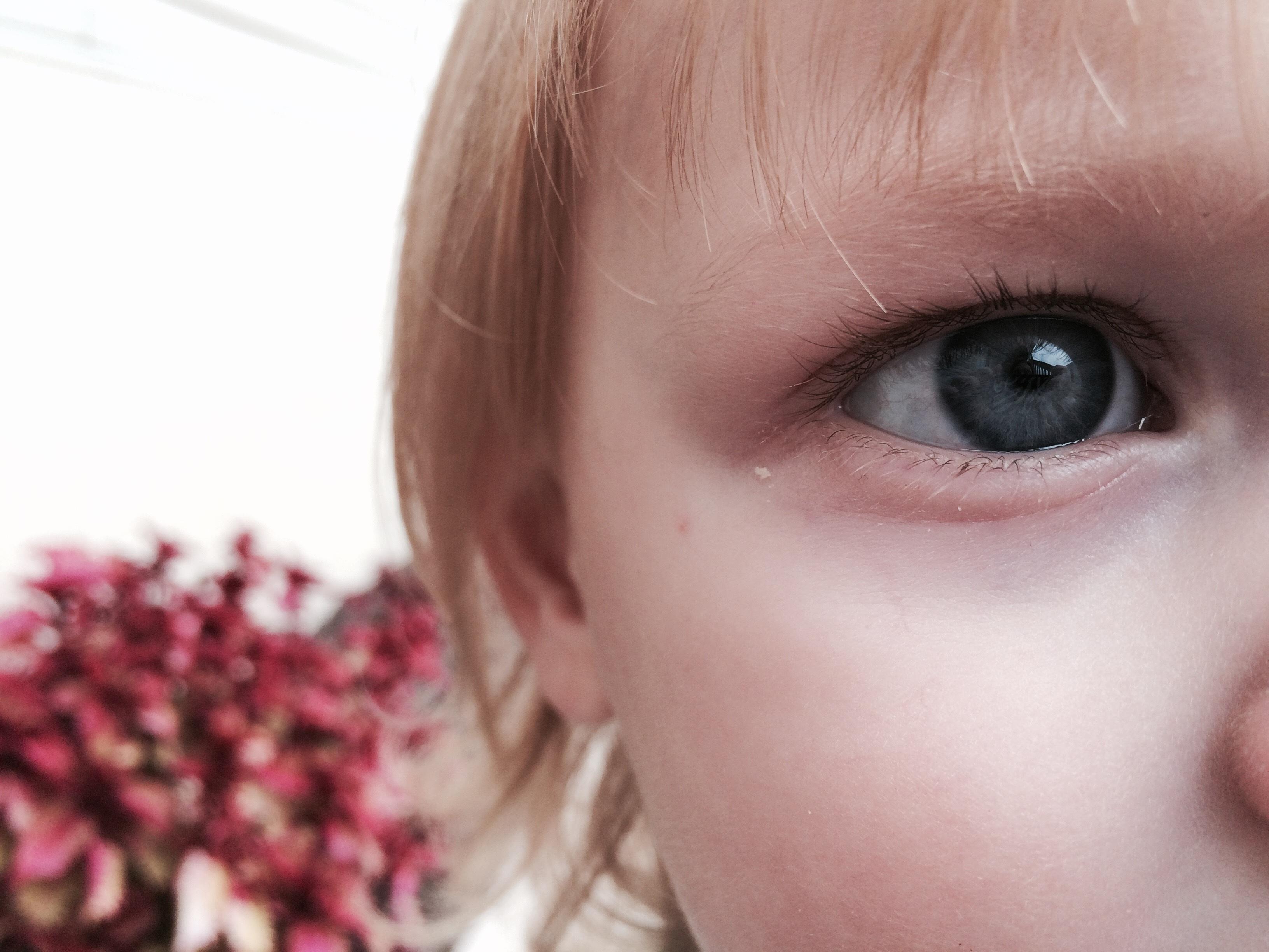 baby pink eye - HD1200×900