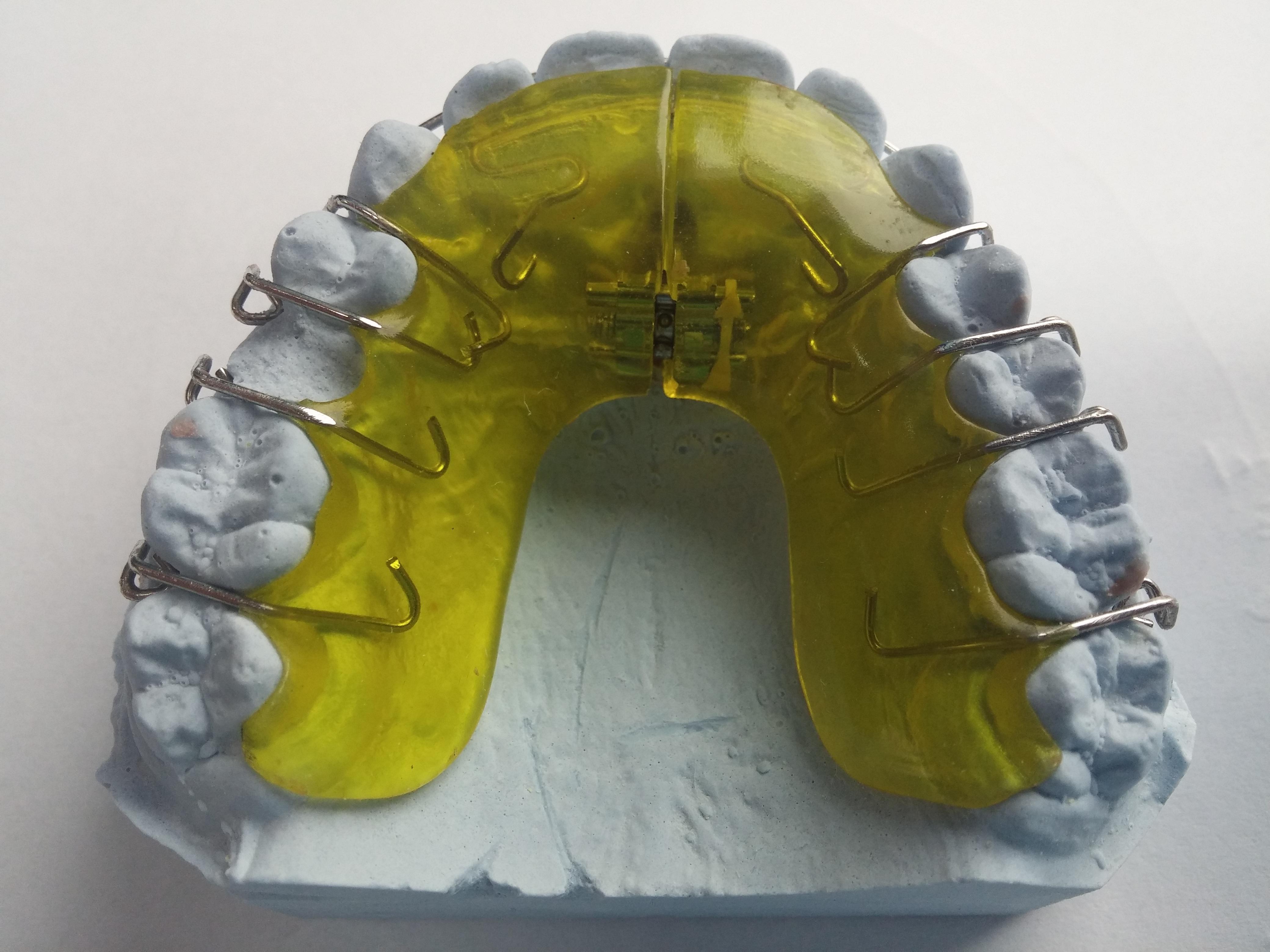 Kostenlose foto : Gelb, schließen, Spielzeug, Mund, Zahnarzt ...